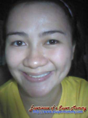 dental restoration of a Filipino Mom